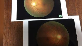 緑内障に網膜剥離:パパ