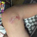 体育の授業で怪我:長男