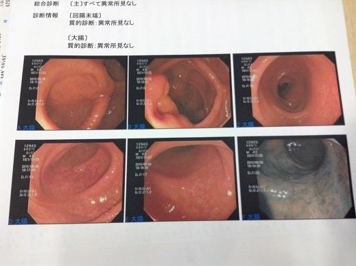 大腸内視鏡検査のポイント