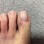 足の怪我その後:パパ