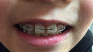 歯の矯正:次男