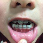 歯の矯正4月:次男
