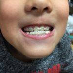 歯の矯正終盤:次男