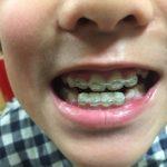 次男の歯科矯正の費用と効果まとめ